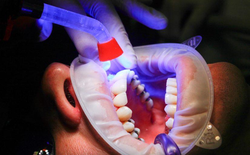 Złe podejście żywienia się to większe niedostatki w ustach oraz również ich utratę